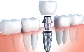 #implant dişhekimi