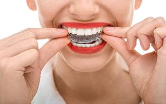 #ortodonti şeffaf plak dişhekimi