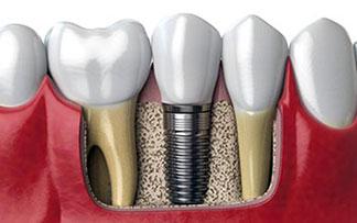 diş implantı tekirdağ