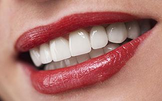Lamine zirkonyum diş beyazlatma bonding