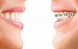şeffaf plak ortodonti